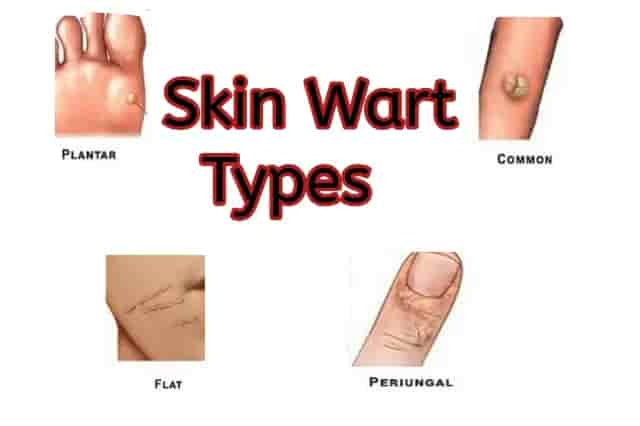 Types of skin wart and the reasons for appearance 1 1